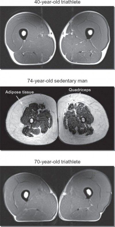 Muscle-Loss Cross-Sections